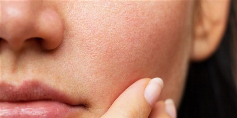 بر اساس نوع پوست شما چه کرم ضدآفتابی بهتر است ؟