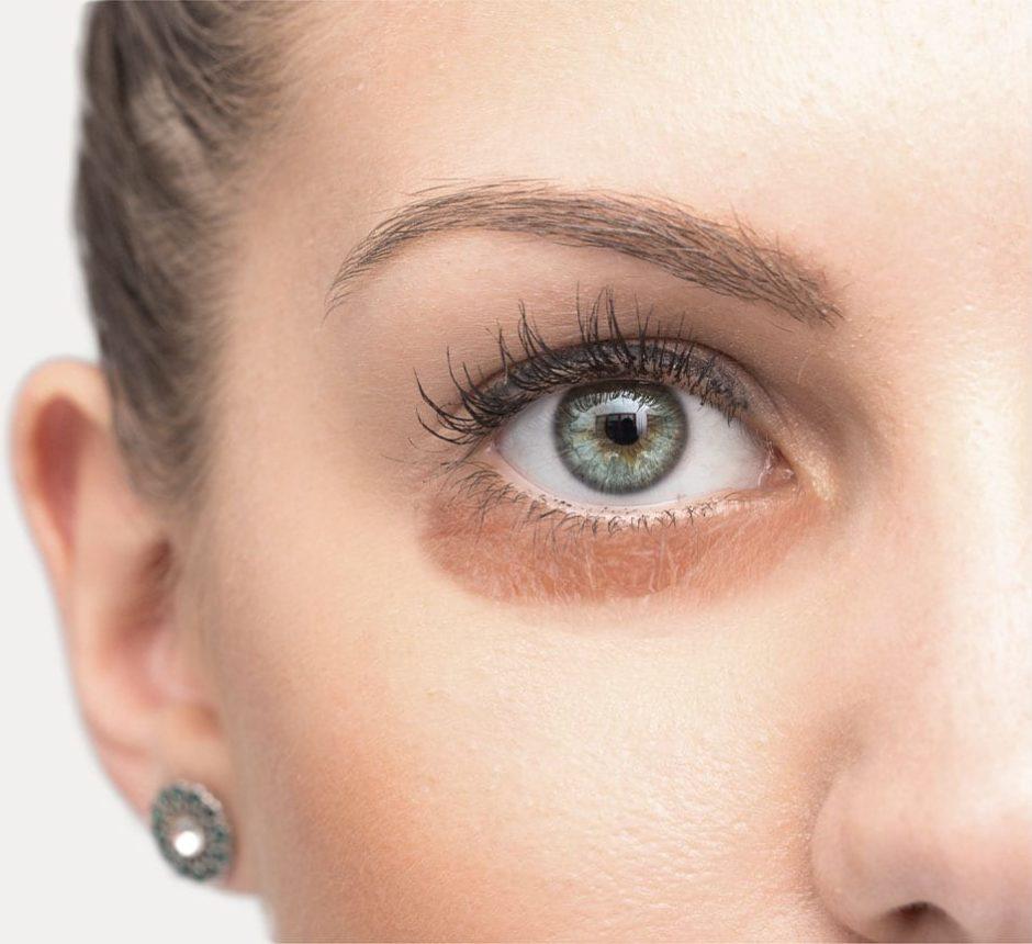 عوامل مؤثر در ایجاد سیاهی دور چشم