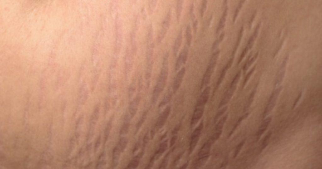 آیا خشکی پوست در دوران بارداری طبیعی است؟