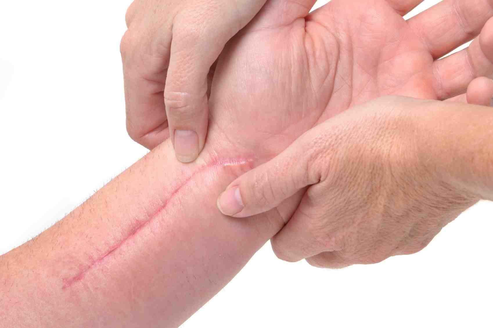 درمان های اسکار پوستی