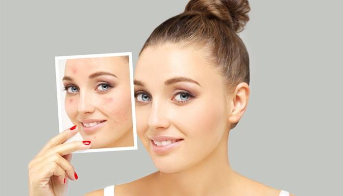 پیشگیری از ایجاد اسکار پوستی و مراقبت از پوست